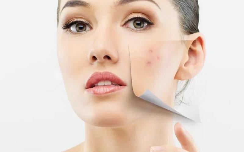 Acne therapie Nijmegen