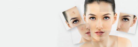 Dé huidexpert op het gebied van huidverbetering en anti-ageing