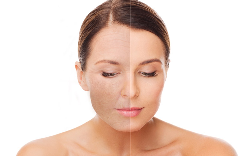Ydun laser: Skinresurfacing